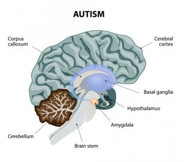 relatie met autistische man